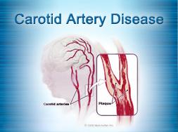 Carotid Artery Surgery