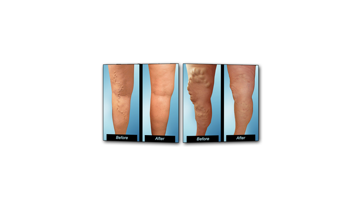varicose veins before and after pictures center