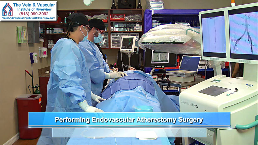 Riverview Peripheral Artery Disease Treatment at The Vein and Vascular Institute of Riverview