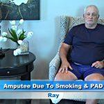 Peripheral Vascular Disease Treatment Patient Ray Reviews Dr. Goldbach