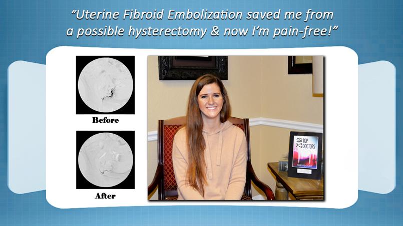 Uterine Fibroid Embolization Treatment Review Riverview Florida